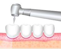 Het hulpmiddel van de behandeling van tandartsDental, tandheelkunde boren De behandeling van tandpijn, boortanden Vector illustra stock illustratie