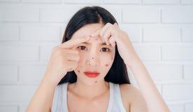 Het jonge Aziatische probleem van het de acnevoorhoofd van de vrouwensamendrukking stock afbeelding