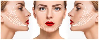 Het jonge vrouwelijke gezicht Antiaging en draad het opheffen concept Stock Foto's