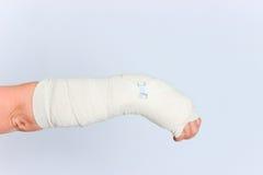 Het jonge wijfje met gebroken dient gegoten in Stock Fotografie