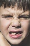 Het kind toont ontbrekende tanden stock afbeelding