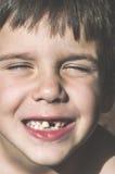 Het kind toont ontbrekende tanden stock afbeeldingen