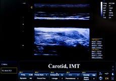 Het kleurrijke beeld van de ultrasone klankmonitor De slagader van de halsslagader royalty-vrije stock foto