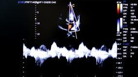 Het kleurrijke beeld van de ultrasone klankmonitor Het Hartmening van de vier Kamersbaby stock video