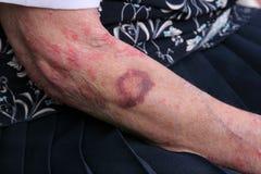 Het kneuzen en Sceriosis Stock Foto's