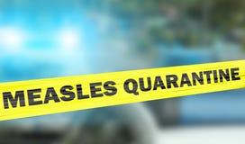 Het kordonband van de mazelenquarantaine met politielichten Stock Afbeelding