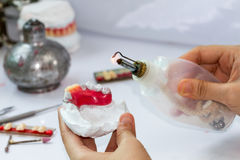 Het maken van gebit Royalty-vrije Stock Afbeelding