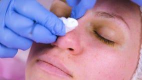 Het mechanische schoonmaken van het gezicht bij de schoonheidsspecialist Cosmetologist drukt de acne op de neus van de medische p stock video