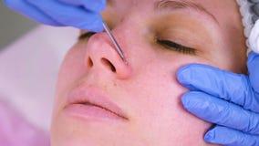 Het mechanische schoonmaken van het gezicht bij de schoonheidsspecialist Cosmetologist drukt de acne op de neus van de medische p stock footage