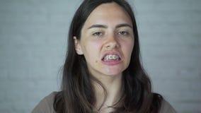 Het meisje draagt steunen op haar tanden ongemak, pijn stock videobeelden