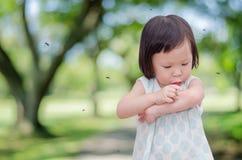 Het meisje heeft allergieën met muggenbeet Stock Foto