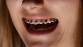 Het meisje opent haar mond, tanden met steunen stock footage