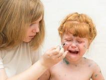 het meisjesmamma smeert de behandeling voor waterpokken stock afbeelding