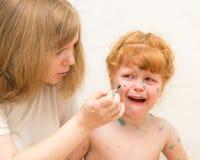 het meisjesmamma smeert de behandeling voor waterpokken stock fotografie