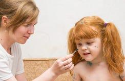 het meisjesmamma smeert de behandeling voor waterpokken stock afbeeldingen