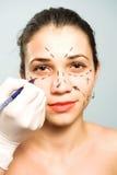 Het merken van gezicht voor kosmetische chirurgie Royalty-vrije Stock Foto