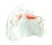 Het model van het pleistergebit met draad voor maakt gebit Royalty-vrije Stock Afbeelding
