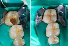 Het nabootsen aard in tandheelkunde royalty-vrije stock afbeeldingen