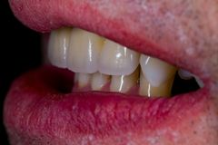 Het natuurlijke kijken kunstmatige ceramische tanden Stock Foto