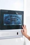 Het onderzoeken van tandenröntgenstraal Royalty-vrije Stock Afbeelding