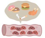 Het ongezonde voedsel stelde verzadigd vet samen en de tabaksrook is schadelijk voor de gezondheid van slagader Het concept van d stock illustratie