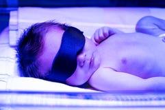 Het pasgeboren baby ontvangen phototherapy voor geelzucht stock foto's
