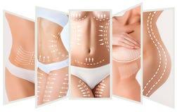 Het plan van de celluliteverwijdering Witte noteringen op jong vrouwenlichaam royalty-vrije stock foto's