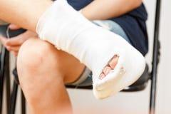Het pleister van de het beenverwonding van de zittingsmens, enkel stock foto