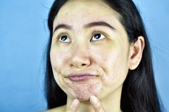 Het probleem van de acnehuid, Aziatische vrouw ergert en bored over hormonale pukkels royalty-vrije stock foto