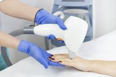 Het proces van laserontharing van vrouwelijke lidmaten stock afbeelding
