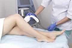 Het proces van laserontharing van vrouwelijke lidmaten stock afbeeldingen
