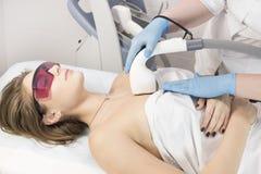 Het proces van laserontharing van vrouwelijke lidmaten stock foto
