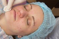 Het professionele acne gezichts reinigen in de cabine Royalty-vrije Stock Afbeelding