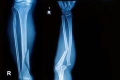 Het röntgenstraalbeeld toont breukbeen en voorarm stock afbeelding