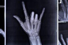 Het röntgenstraalbeeld van een hand die I maken houdt van u symbolen royalty-vrije stock afbeeldingen