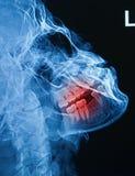 Het röntgenstraalbeeld van menselijke schedel toont breukonderkaak Royalty-vrije Stock Fotografie