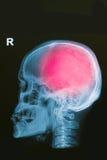 Het röntgenstraalbeeld van menselijke schedel toont hoofdverwonding royalty-vrije stock foto's