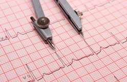 Het rapport en de beugels van de elektrocardiogramgrafiek Royalty-vrije Stock Foto's