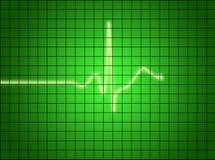 Het Signaal van het electrocardiogram Stock Afbeeldingen