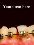 Het sluiten van hiaat met tandsteunen Stock Foto's