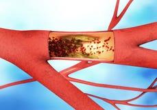 Het storten en het versmallen van het bloedvat - arteriosclerose Stock Afbeelding