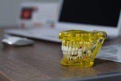 Het tand de student van de tandtandheelkunde het leren het onderwijsmodel die tanden, wortels, gommen, gomziekte tonen stock fotografie