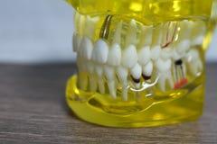 Het tand de student van de tandtandheelkunde het leren het onderwijsmodel die tanden, wortels, gommen, gomziekte tonen stock foto's