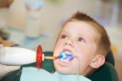 Het tand indienen van kindtand langs royalty-vrije stock afbeelding