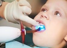 Het tand indienen van kindtand langs stock foto