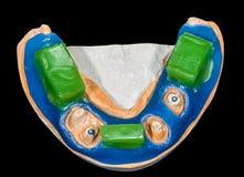 Het tandmodel van de beetregistratie Stock Foto's