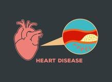 Het vectorpictogram van het hartkwaalembleem Stock Fotografie