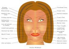 Het verouderen gezichtsveranderingen Stock Foto's