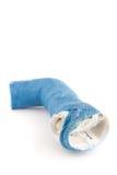 Het verworpen Blauwe Gegoten Wapen van de Glasvezel Royalty-vrije Stock Foto's