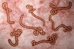Het virus van Ebola Stock Foto's